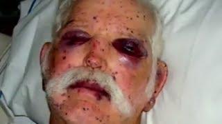 getlinkyoutube.com-Attacked By 2000 Bees - Bizarre ER