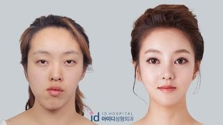 getlinkyoutube.com-Double Jaw Surgery Asymmetrical Face, Korea Plastic Surgery  Let Me In TV Show,