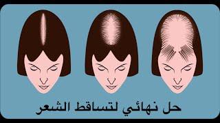 getlinkyoutube.com-اسألوني : حل نهائي لتساقط الشعر ! اسأل مجرب