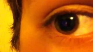 I has dilated pupils