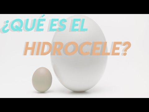 Micro: Hidroceles