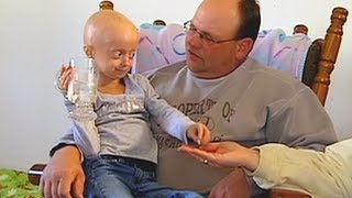 getlinkyoutube.com-Progeria clinical trial at Boston Children's Hospital