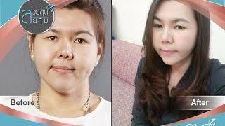 getlinkyoutube.com-สวยสุดสยาม 16 ธันวาคม 2558 สาวอ้วนเเก้มใหญ่ กับ การเปลี่ยนเเปลงครั้งยิ่งใหญ่ตั้งเเต่หัวจรดเท้า
