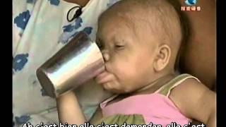 getlinkyoutube.com-Femme de 28 ans dans un corps de bebe trad. fr + PT
