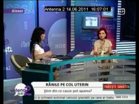 DR. ZORELA SGARBURA -ranile pe col uterin (1)