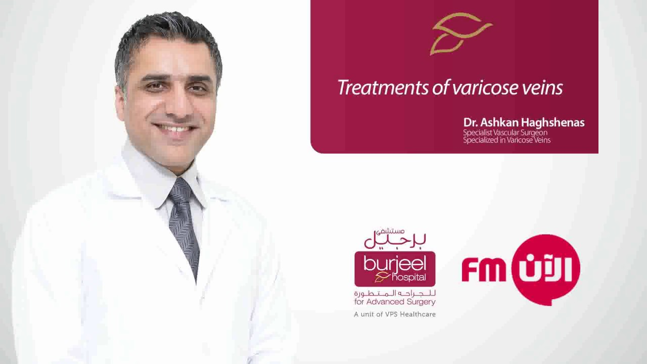 Treatments of varicose veins by Dr. Ashkan Haghshenas/Al Aan FM Radio