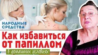 getlinkyoutube.com-КАК ИЗБАВИТЬСЯ от ПАПИЛЛОМ в домашних условиях || народные средства