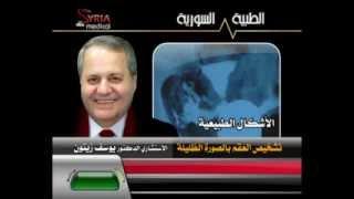 getlinkyoutube.com-الدكتور يوسف زيتون العقم و الصورة الظليلة