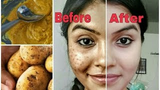 Remove dark spots in just 7 days | 100% Natural | Get rid of uneven skintone