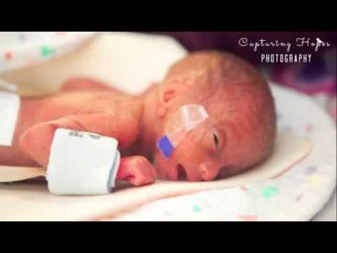 ولادة أصغر طفلة في العالم بحجم