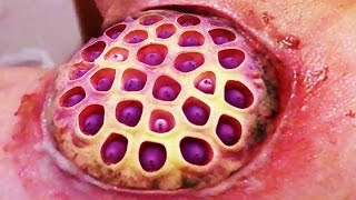 getlinkyoutube.com-Mango Worm Cysts and Trypophobia