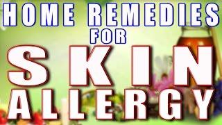 getlinkyoutube.com-Home Remedy for Skin Allergy II त्वचा की एलर्जी का घरेलू उपचार II