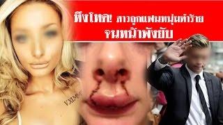 getlinkyoutube.com-หึงโหด! สาวถูกแฟนหนุ่มทำร้ายจนหน้าพังยับ #สดใหม่ไทยแลนด์  ช่อง2