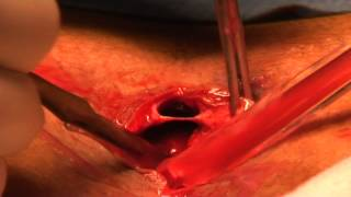 getlinkyoutube.com-Pilonidal Abscess - incision and drainage