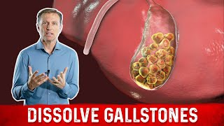 How to Dissolve Gallstones