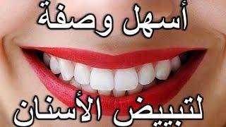 getlinkyoutube.com-تبييض الاسنان .اقوى  واسرع طريقة طبيعية مجربة ومضمونة لتبييض الاسنان  وصفة سهلة فعالة ورخيصة  مجربة