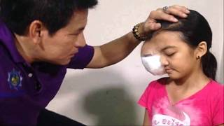 getlinkyoutube.com-Thai Girl has Large Tumor Removed from Eye!