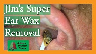 getlinkyoutube.com-Super Ear Wax Removal with Cerumen-y Goodness | Auburn Medical Group