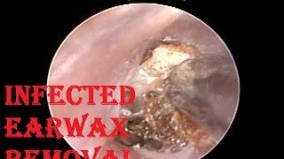 getlinkyoutube.com-Suffering from Ear Blockage , Pain & Vertigo for months - Got Relief after Procedure
