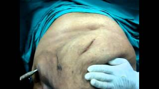 getlinkyoutube.com-عملية شد البطن بالتخدير الموضعي