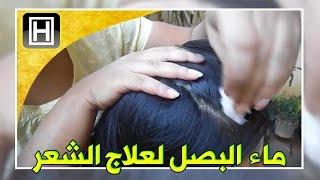 getlinkyoutube.com-علاج تساقط الشعر بماء البصل وتحفيز نموه طبيعيا
