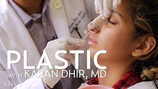 getlinkyoutube.com-Savannah's Rhinoplasty Surgery Experience | PLASTIC with Karan Dhir, MD