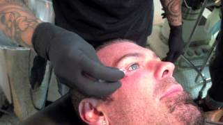 getlinkyoutube.com-Rich Piana getting dermal implant removed