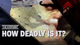 getlinkyoutube.com-How Deadly Is The KARAMBIT?!