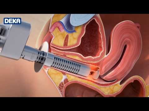 MonaLisa Touch-The New Laser Treatment Against Vaginal Atrophy, Laxity and Urinary Incontinence