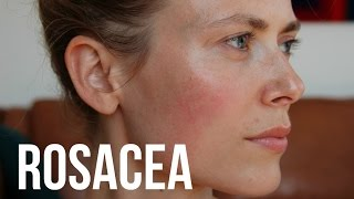 getlinkyoutube.com-What's Rosacea And Treatments | Makeup And Medicine