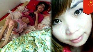 Chiny: Teściowa zagłodziła żonę syna na śmierć.