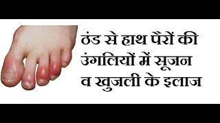 ठंड से हाथ पैरों की उंगलियों मे सूजन व खुजली के घरेलू इलाज़ Home Remedies for Chilblains (Perniosis)
