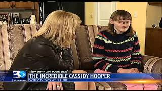 Cassidy Hooper - Teenage girl born without nose and eyes