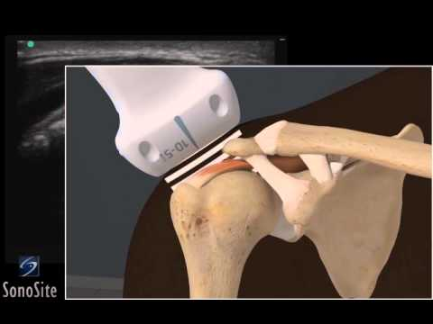 3D How To: Ultrasound Exam of Acromial Impingement of the Shoulder - SonoSite Ultrasound