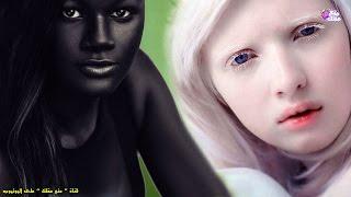 getlinkyoutube.com-5 فتيات يمتلكن أغرب لون بشرة فى العالم !