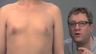 getlinkyoutube.com-Causes and treatments for puffy nipples in men, explained by Dr. Steven Teitelbaum