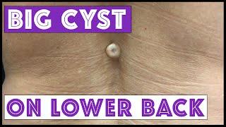 getlinkyoutube.com-BIG cyst on lower back!