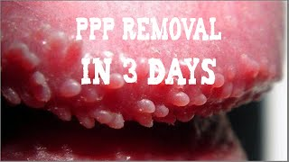 getlinkyoutube.com-PPP (White Bumps on Penis) Removal | Natural Skin Treatment