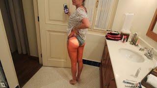 getlinkyoutube.com-Her Worst Sunburn!!!