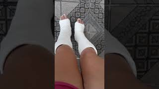 Cast fetiche - Dois pés engessados