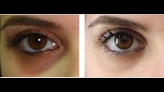 getlinkyoutube.com-Instant Skin Whitening Face Mask,Potato for dark circles under eyes