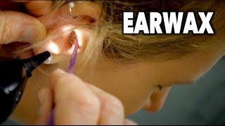 flushyoutube.com-PAINFUL EARWAX REMOVAL (2 Huge Clumps) | Dr. Paul