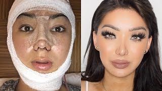 getlinkyoutube.com-My Facial Plastic Surgery Story! | Dragun