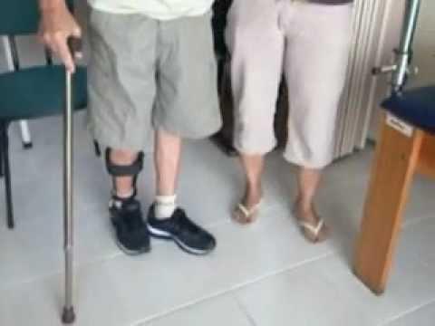 vital sampol - Órtese tornozelo pé - AFO na Esclerose Lateral Amiotrófica