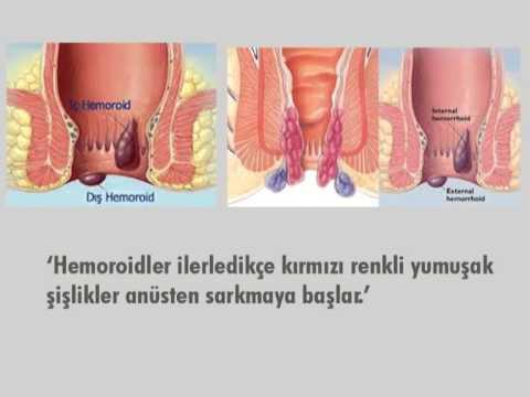 Hemoroid Nasıl Bir Hastalıktır ? Tedavisi Nasıldır?