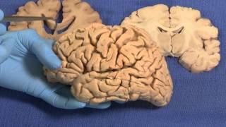 getlinkyoutube.com-Limbic: Neuroanatomy Video Lab - Brain Dissections