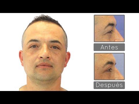 Blefaroplastia Superior Antes y Después | Experiencia Adrián