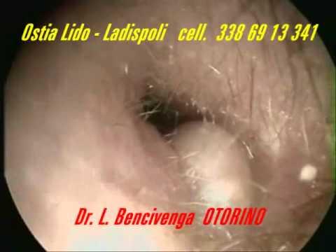 Otorino Ostia Ladispoli ( IL MAL D'ORECCHI  e le Otiti Esterne Batteriche)