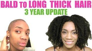 getlinkyoutube.com-3 Years Natural &  Alopecia Free Hair Update | Bald to Full Thick Hair