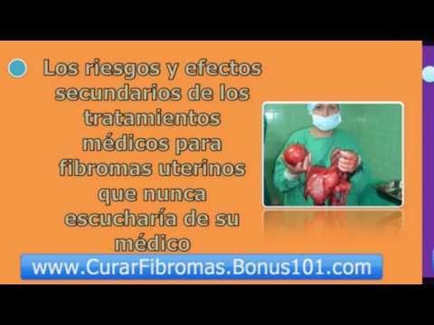 mioma uterino - miomas uterinos - miomas en el utero